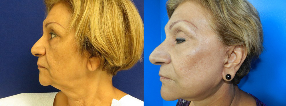 Face Lift Before And After Pictures