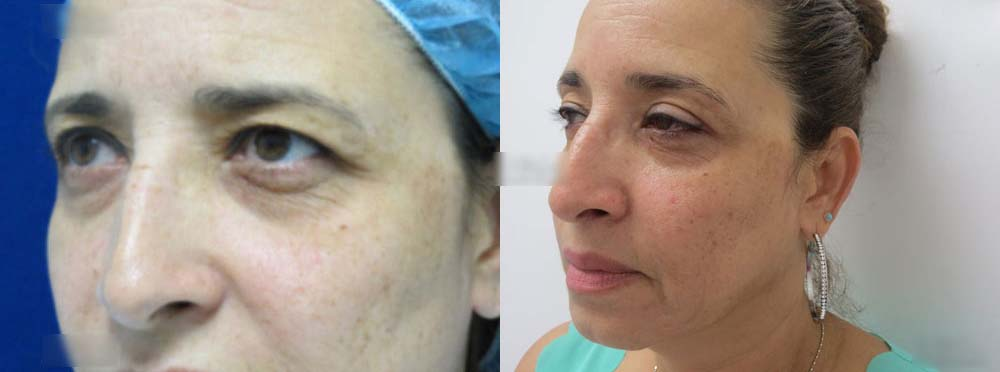 Blepharoplasty Before And After Pictures