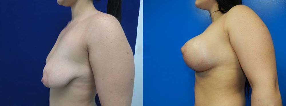 Breast Reduction Before And After Pictures