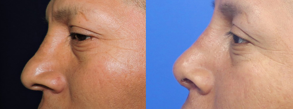 Rhinoplasty Before And After Pictures