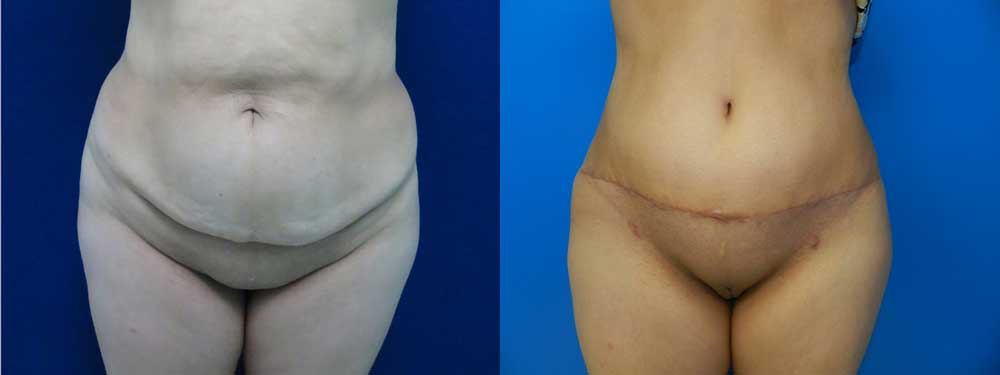 Tummy Tuck Before And After Pictures