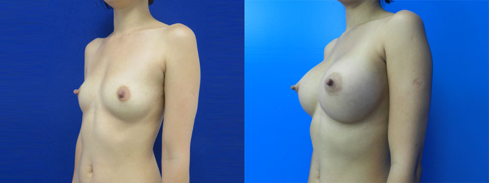 Breast Augmentation Before And After Pictures